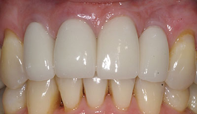 After picture of Dental Implant Placement and Crown Restoration