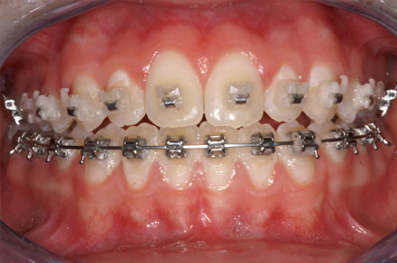 After picture of Dental Surgery at Michael Yokoyama, D.D.S