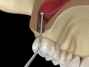 Rendering image of Sinus Lift demonstration at Michael Yokoyama, D.D.S in Encinitas, CA