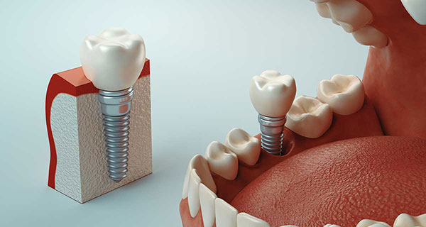 Rendering image of tooth socket graft